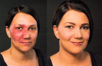 Resultado de imagen para Maquillaje terapéutico
